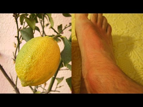 cara mengobati asam urat dengan jeruk lemon