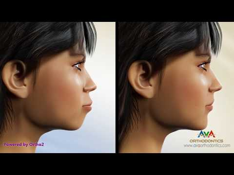 Orthodontic Treatment For Excessive Lip Support Removing 4 Premolars Youtube