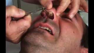 Repeat youtube video Turbinectomie + Septoplastie Fox  MX13 - retrait des mèches