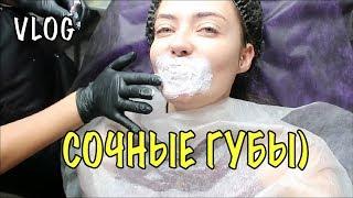 увеличение губ гиалуроновой кислотой До и После -  Полное видео ВЛОГ 423