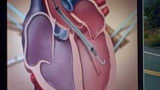Impella 5.0 animation showing how it aids heart failure patients