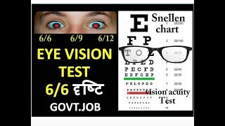 Eye vision test details | vision acuity Test | what is 6/6 vision in Hindi