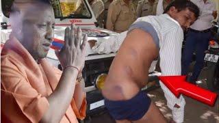 Yogi राज में पुलिस की गुंडई, दरिंदगी का ये चेहरा देख कांप उठेगी रूह....