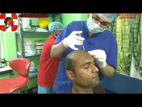Platelet Rich Plasma for Hair Loss In Kolkata - Cheapest PRP In Kolkata India