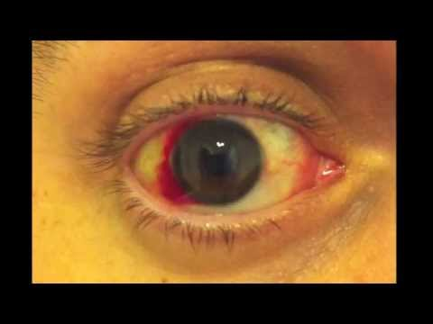 Red Eye After LASIK Treatment