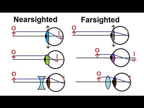 Physics - Optics: Vision Correction (1 of 5) Introduction