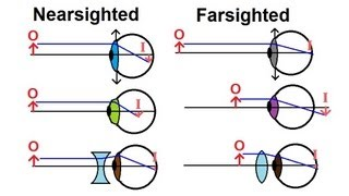 Physics - Optics: Vision Correction (1 of 5) Introduction