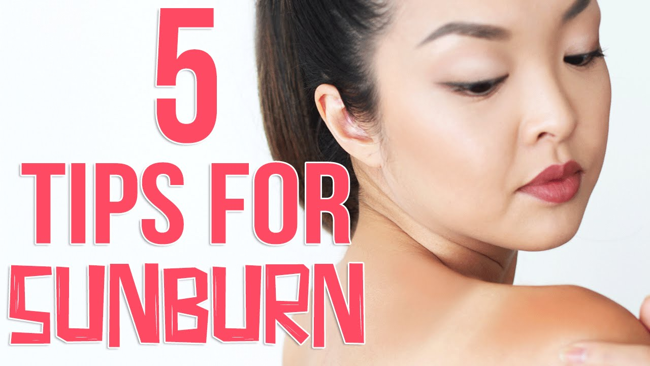How to get rid of a sunburn quickly
