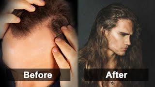 Tips to Reverse/Prevent Hair Loss & Achieve Beautiful Locks