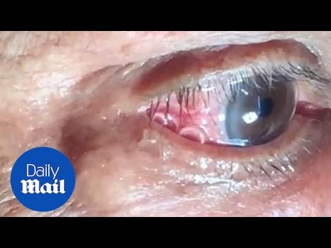 GRAPHIC: Moment 15cm long worm is removed from mans eye