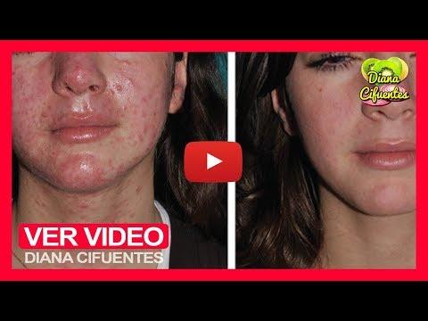 Remedios Para Alergias En La Piel - Como Hacer Una Crema Casera Para Combatir Las Alergias