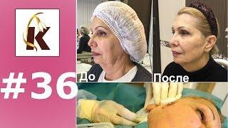 Нити DUAL ARM, до и после, подтяжка лица в нескольких направлениях одной нитью.