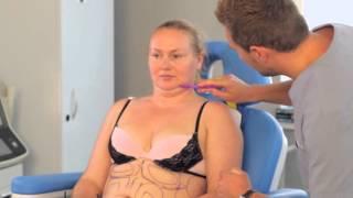 Мария Эрмель: как убрать жир с живота и боков. Преображение в клинике Platinental