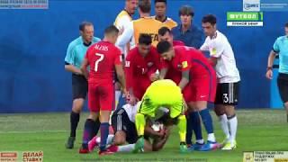 Emre Can vs Chile KC 2017