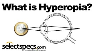 What is Hyperopia? With SelectSpecs.com