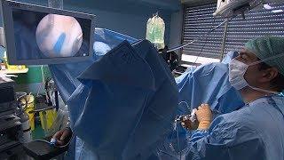 Adénome de la prostate : la chirurgie au laser - Allô Docteurs