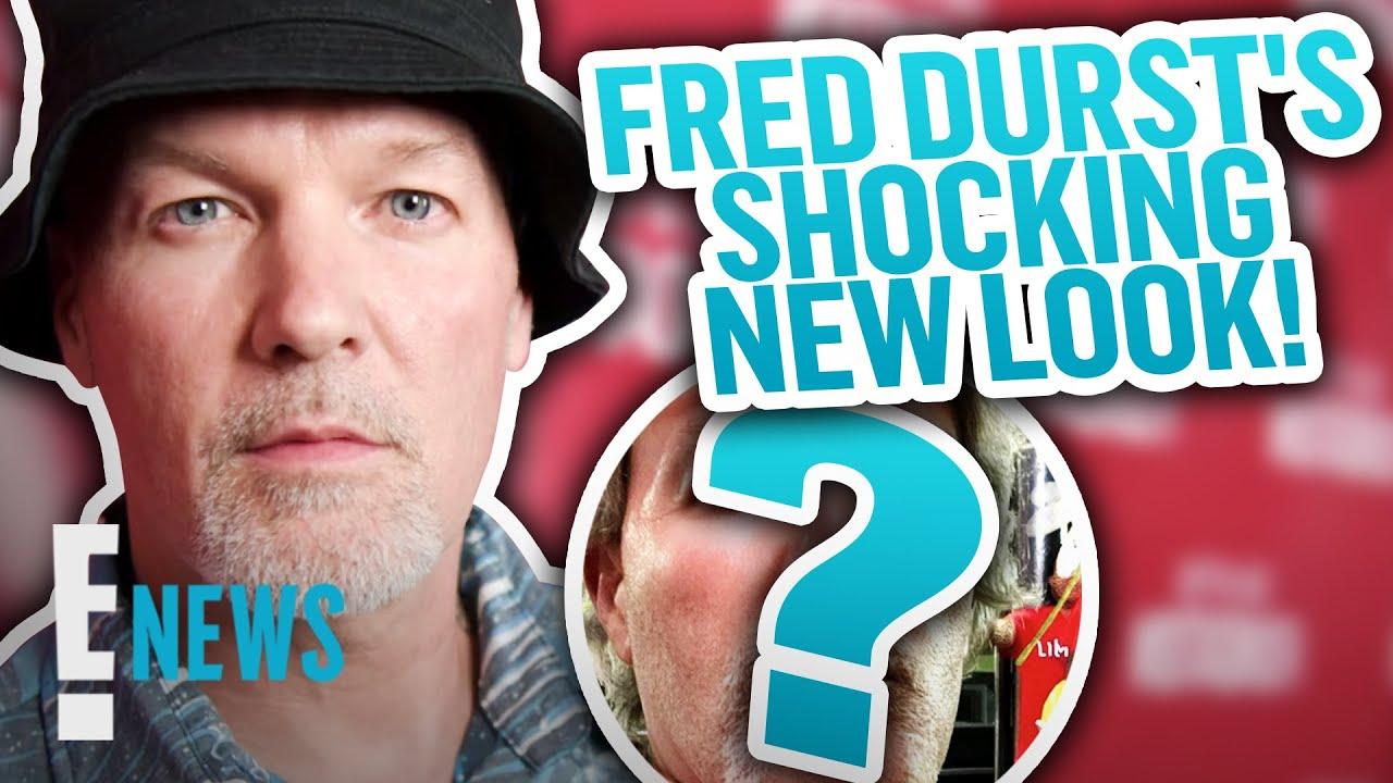 Limp Bizkit's Fred Durst's Shocks Fans With New Look News