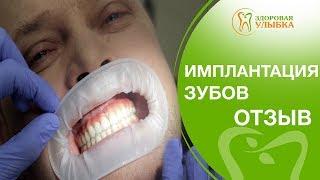 Имплантация зубов как делают. 👄Отзыв пациента о том, как делают имплантацию зубов в Здоровой улыбке.(, 2018-04-25T13:36:51.000Z)