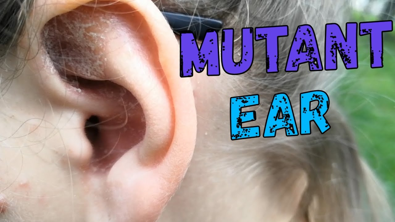 early stage psoriasis ear