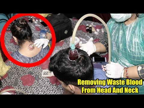 The Best And Easy Way To SOLVE ALL SKIN PROBLEM | #Hijama #CuppingThearpy