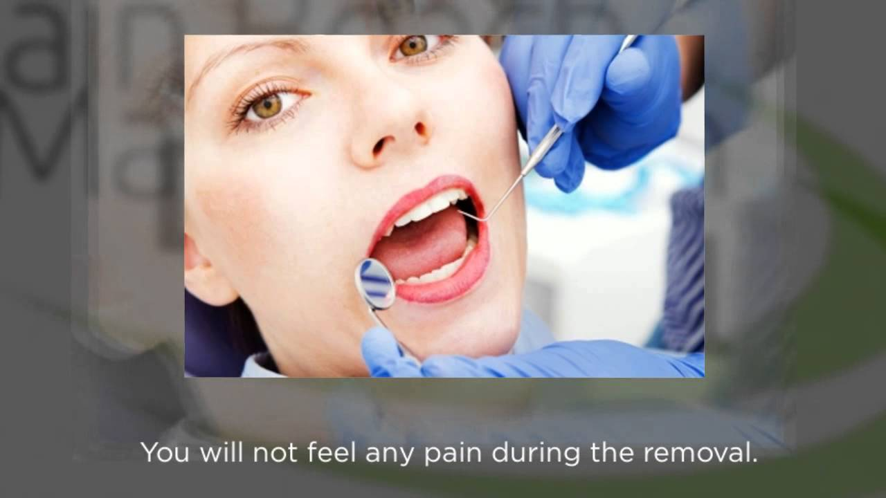 Does it hurt to remove a tooth 52