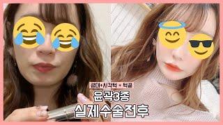 긴얼굴 윤곽수술 ㅅ절골술 전후사진(feat.풀페이스지방…