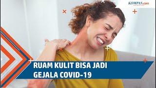 Masalah Kulit Eczema dan Rekomendasi Produknya | FD Skincare 101.