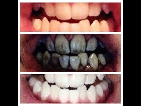 Organic Toothpaste: Fluoride Free Toothpaste That Heals Cavities