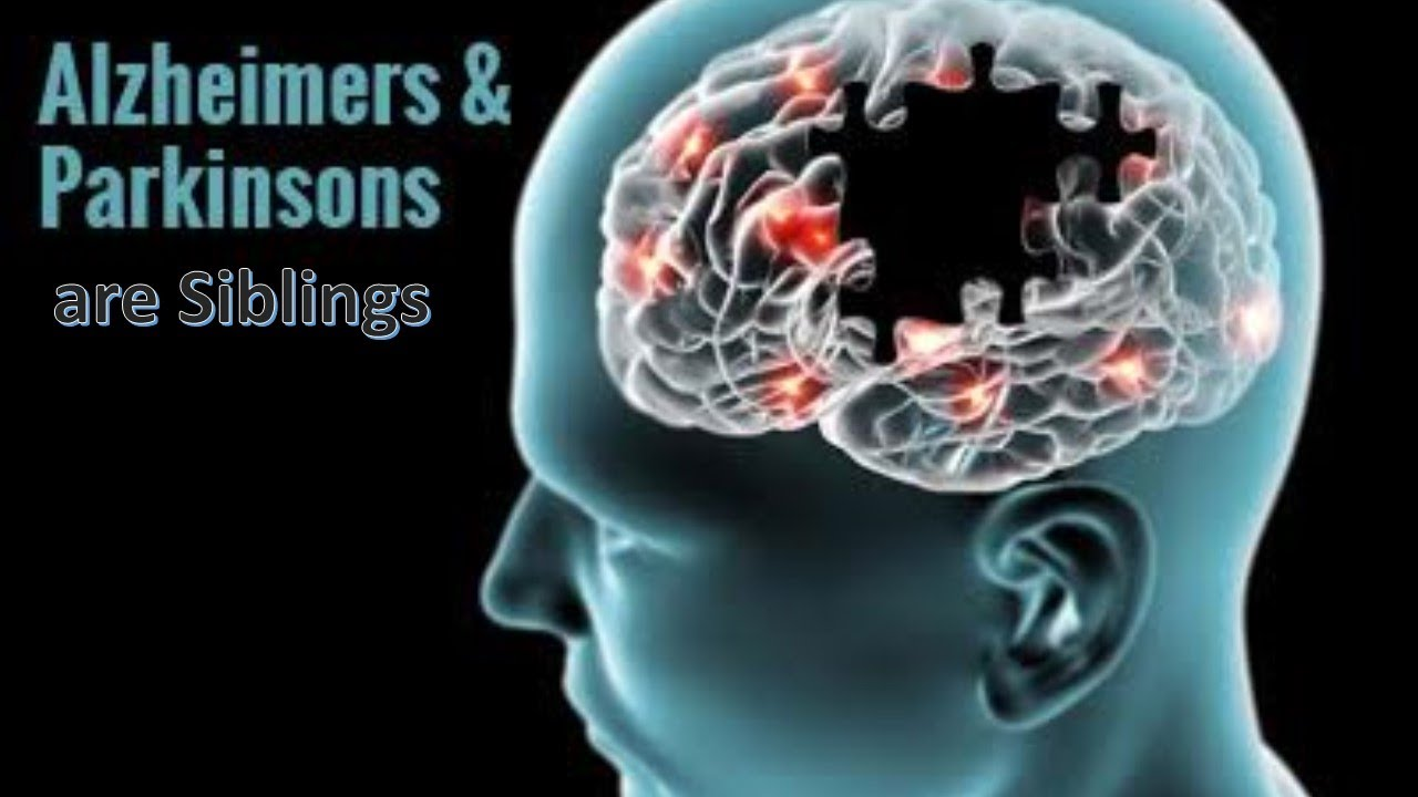 Alzheimer's and Parkinson's are Siblings - YouTube