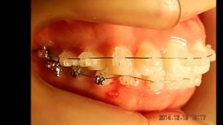 出っ歯さんの歯並び矯正治療by福岡天神矯正歯科ティース thumbnail