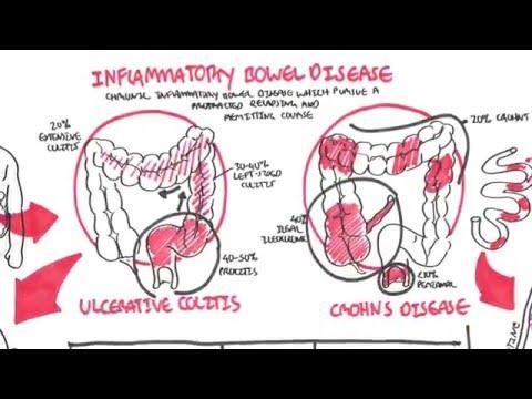 Inflammatory Bowel Disease - Crohns and Ulcerative Colitits Mp3