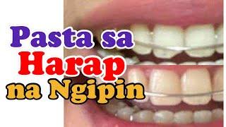 PASTA SA NGIPIN: Chipped off tooth