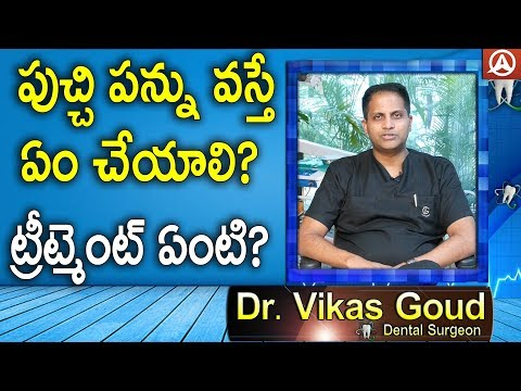 Teeth Cleaning Tips For Carers-Special Interview With Dr.Vikas Gowd - Dental Surgeon-Namaste Telugu
