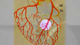 How to treat Heart blockages