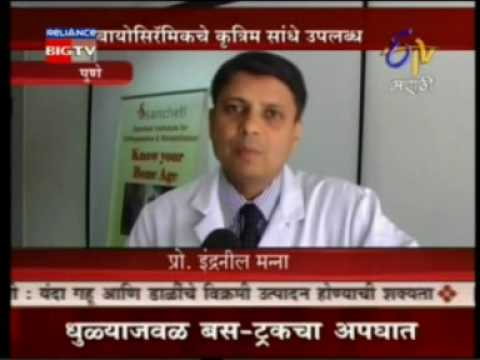 Sancheti Hospital News Coverage on E TV Marathi