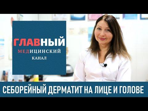 Себорейный дерматит на лице и волосистой части головы
