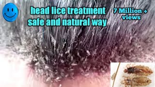 Head lice treatment the safe and natural way/how to remove lice from hair in on day/beauty tips lice
