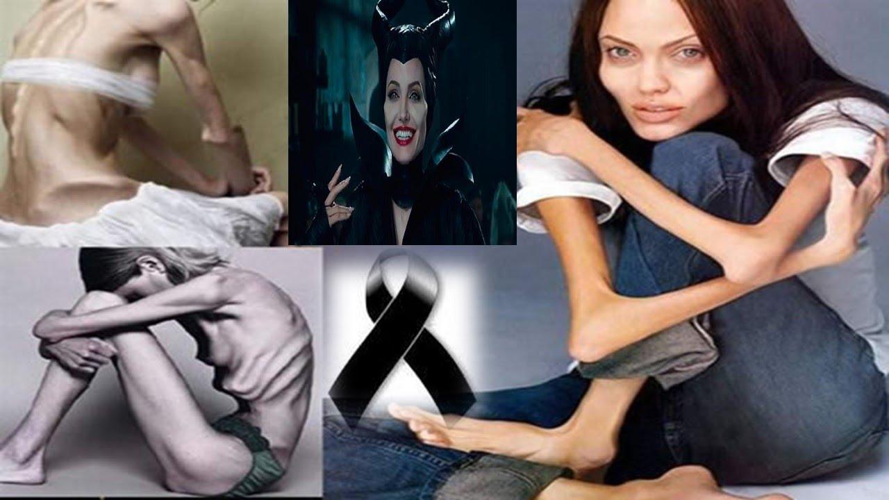 Fotos de mujeres enfermas de bulimia 85