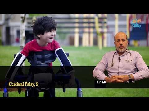 Cerebral palsy: A permanent movement disorder - Dr Shahid MUstafa