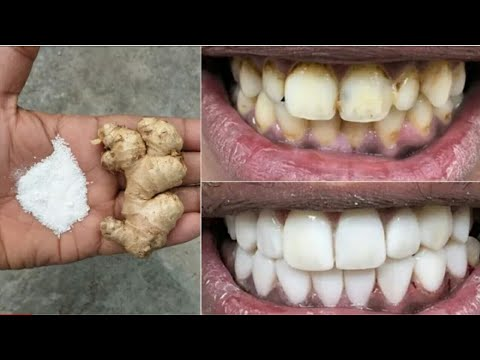 In 2 minutes whiten stubborn dirty teeth and remove stains from teeth #howtowhitenyourteeth