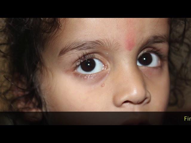 Molluscum Contagiosum in a Child Cured : Dr Ravi Singh