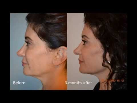 Ultherapy Reverse Sagging Skin Tighten Your Neck