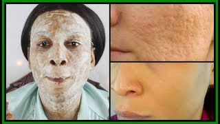 THE SECRET TO SHRINK LARGE PORES IN 3 DAYS |100% RESULTS | MAGIC REMEDY |Khichi Beauty