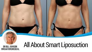 Dr. Johnson - How Does Liposuction Work & Does The Fat Come Back?