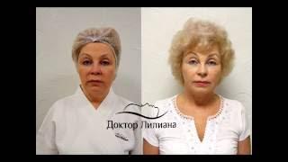 SMAS (СМАС) лифтинг - безоперационная подтяжка лица, подтяжка лица смас