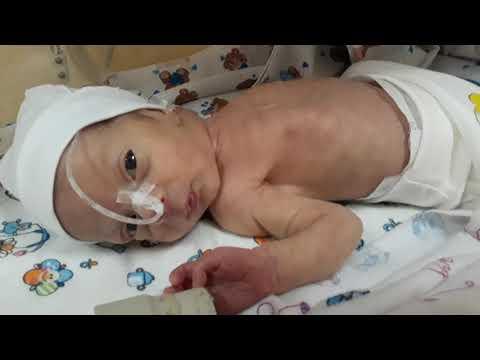 Роды 32 недели 2150 вес при рождении не дышал самостоятельно