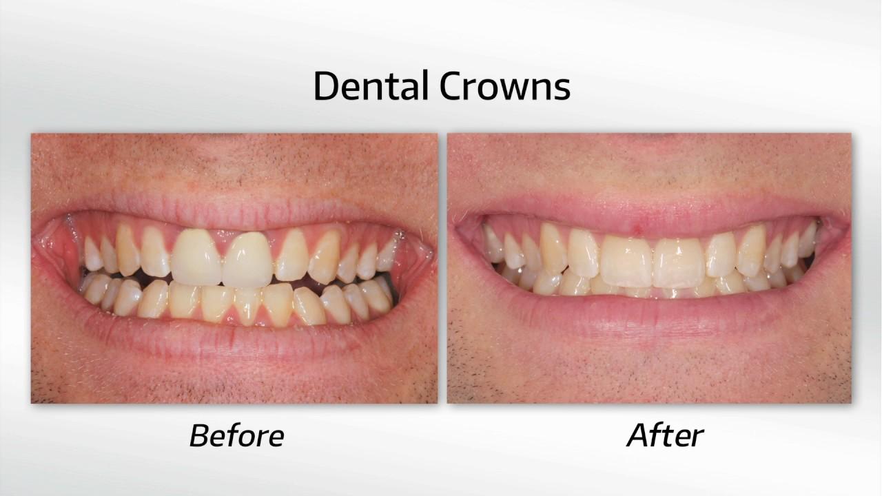 Shor Dental - Restorative, Cosmetic & Implant Dentistry