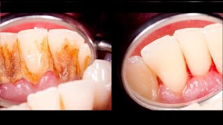 4 Mixtures That Completely Remove Tartar From Your Teeth
