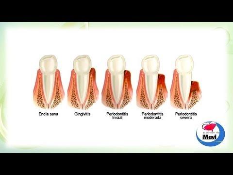 Remedios caseros para las enfermedades de las encias (periodontitis, gingivitis)