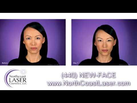Botox Cleveland - North Coast Laser Cosmetics